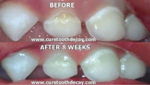 before-tooth-remineralization_mini